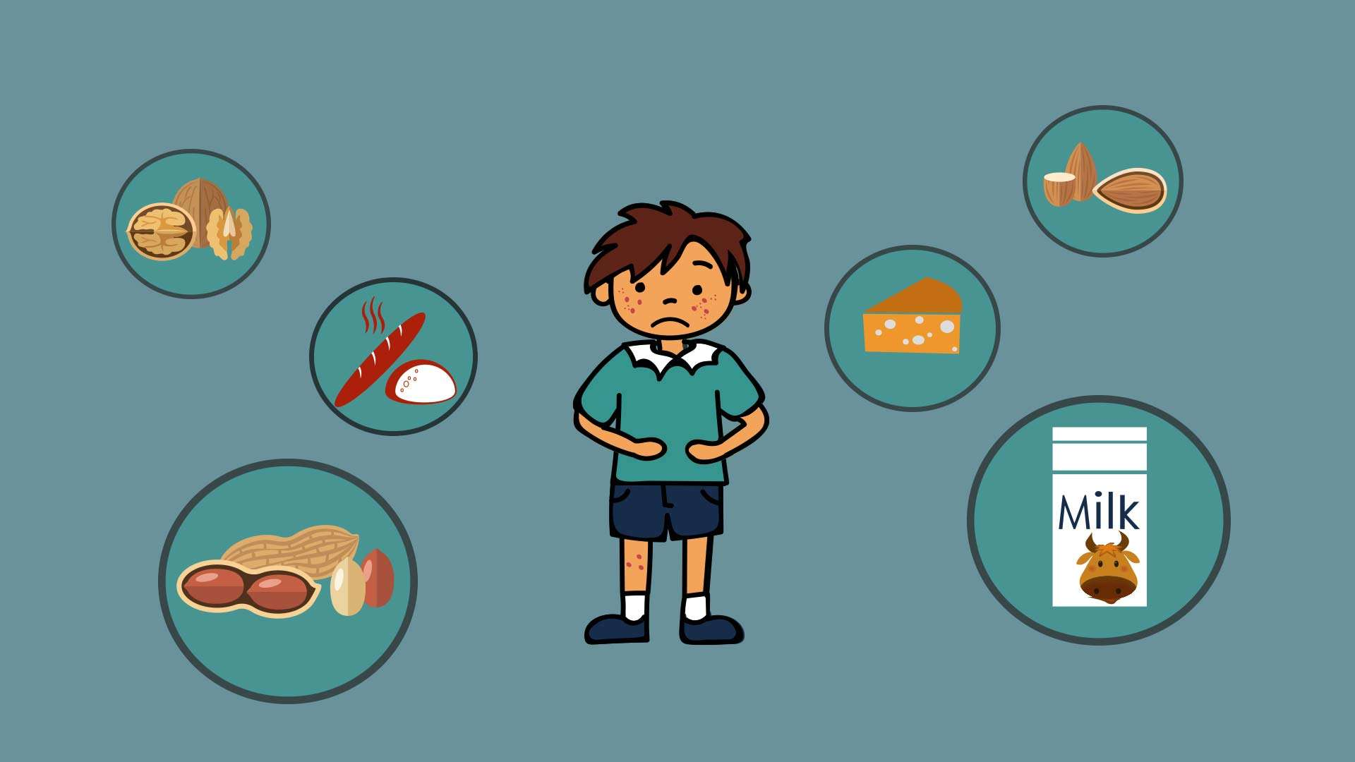 Food Allergies : Causes, Prevention and Solutions